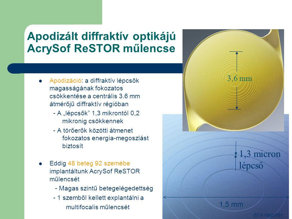 Apodizált diffraktív optikájú AcrySof ReSTOR műlencse