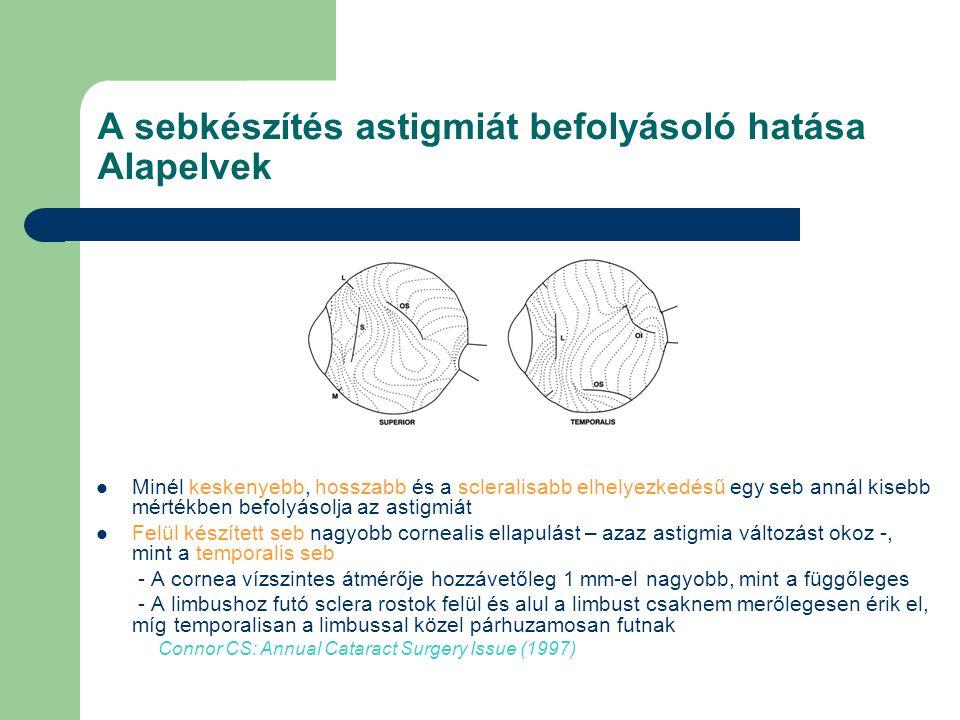 A sebkészítés astigmiát befolyásoló hatása Alapelvek
