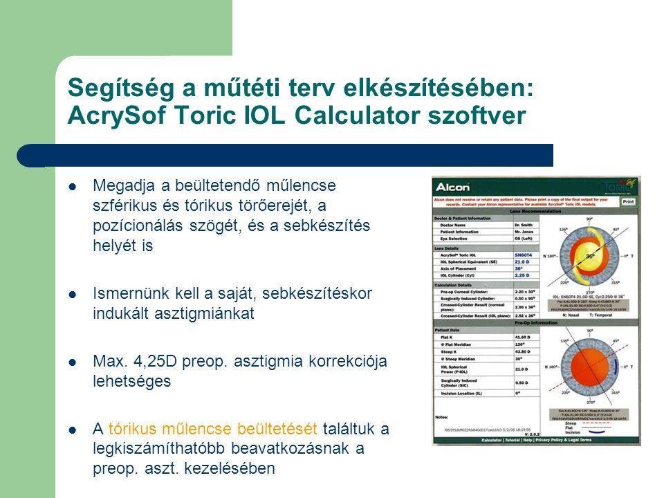 Segítség a műtéti terv elkészítésében: AcrySof Toric IOL Calculator szoftver