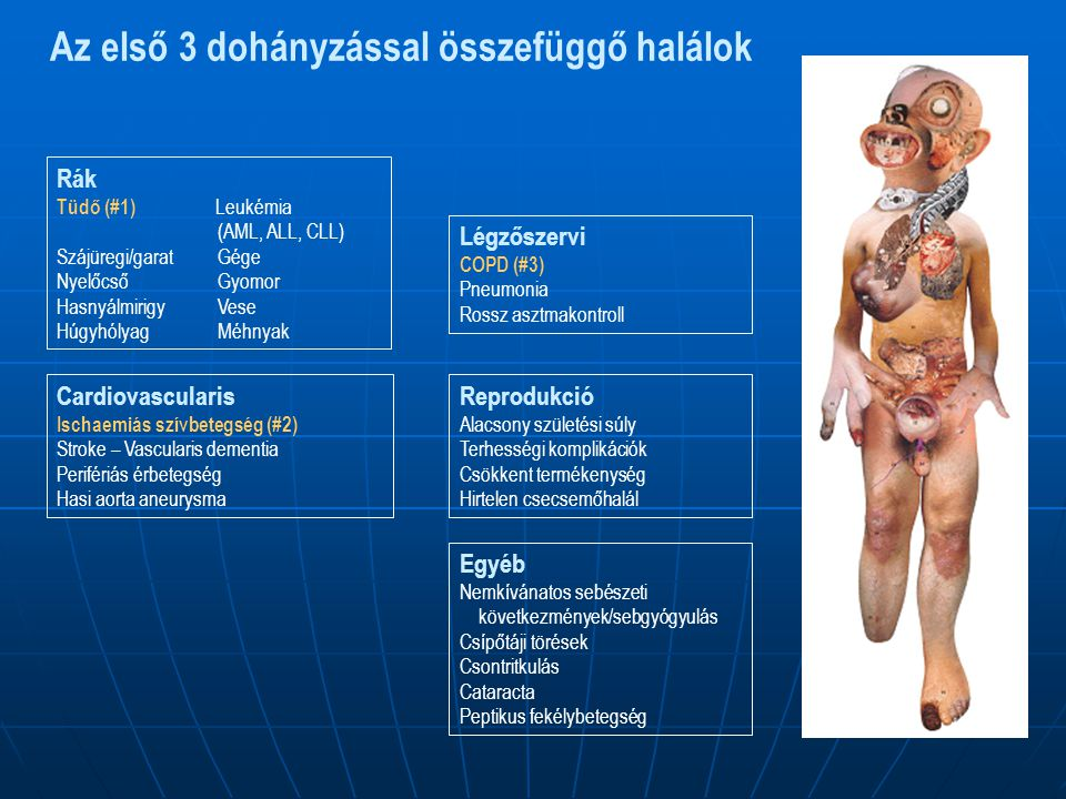 Az első 3 dohányzással összefüggő halálok