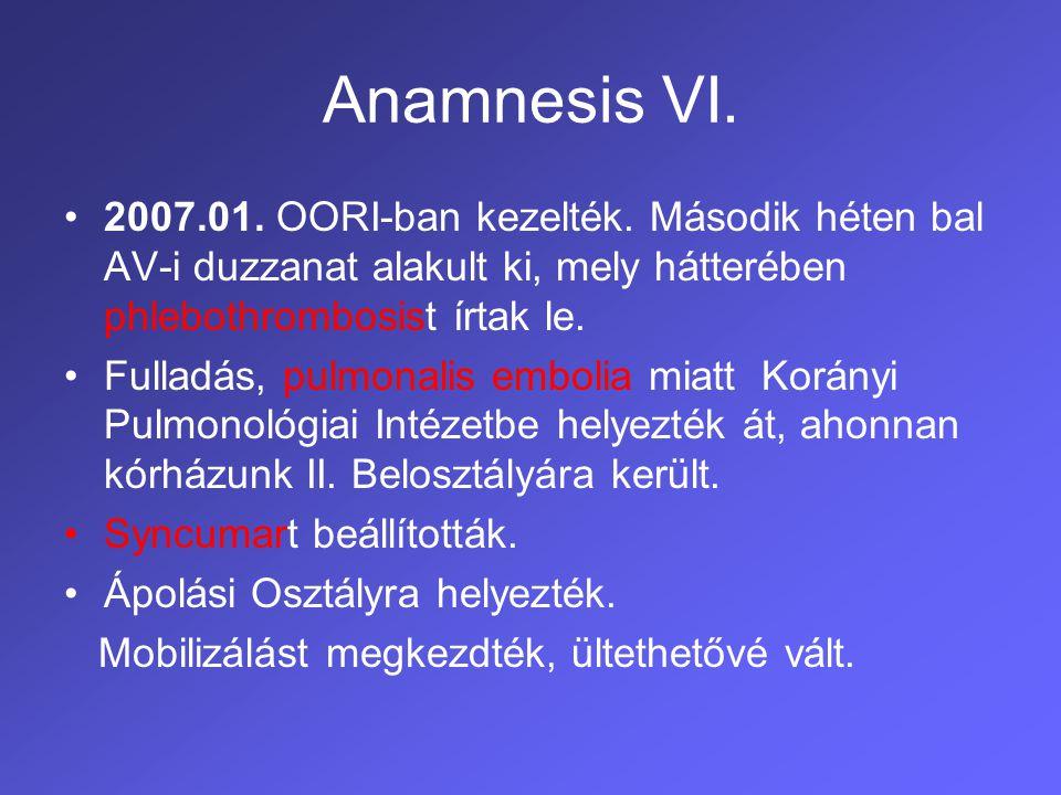 Anamnesis VI. 2007.01. OORI-ban kezelték. Második héten bal AV-i duzzanat alakult ki, mely hátterében phlebothrombosist írtak le.