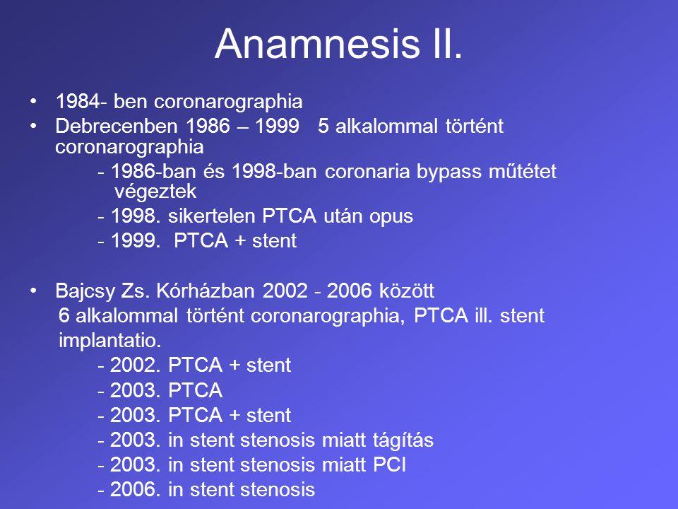 Anamnesis II. 1984- ben coronarographia