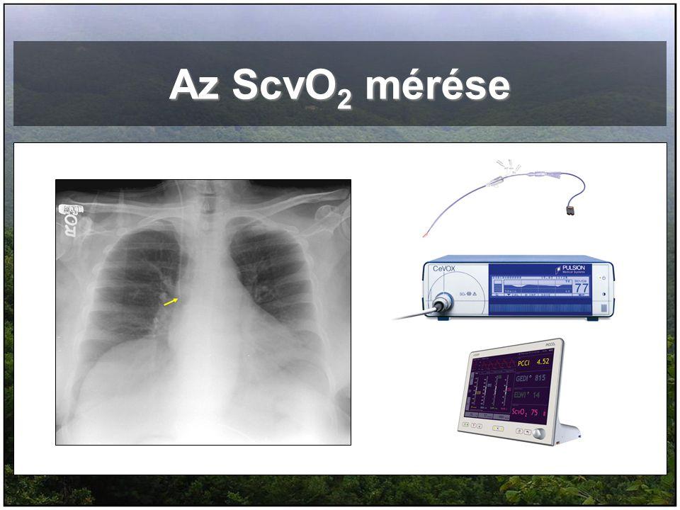 Az ScvO2 mérése