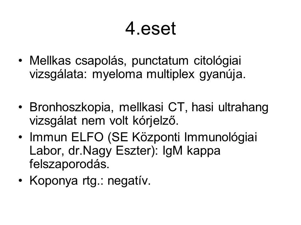 4.eset Mellkas csapolás, punctatum citológiai vizsgálata: myeloma multiplex gyanúja.