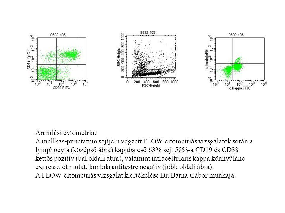 Áramlási cytometria: A mellkas-punctatum sejtjein végzett FLOW citometriás vizsgálatok során a.