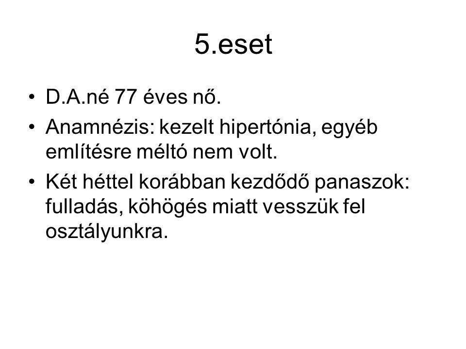 5.eset D.A.né 77 éves nő. Anamnézis: kezelt hipertónia, egyéb említésre méltó nem volt.