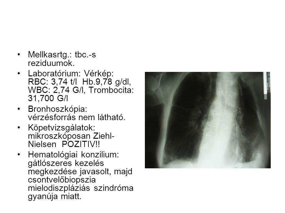 Mellkasrtg.: tbc.-s reziduumok.