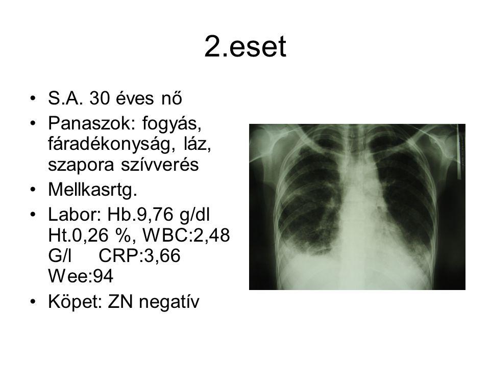 2.eset S.A. 30 éves nő. Panaszok: fogyás, fáradékonyság, láz, szapora szívverés. Mellkasrtg.