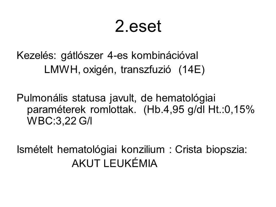2.eset Kezelés: gátlószer 4-es kombinációval