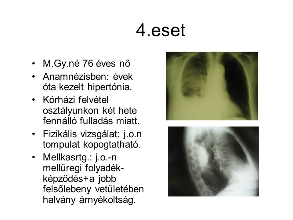 4.eset M.Gy.né 76 éves nő Anamnézisben: évek óta kezelt hipertónia.