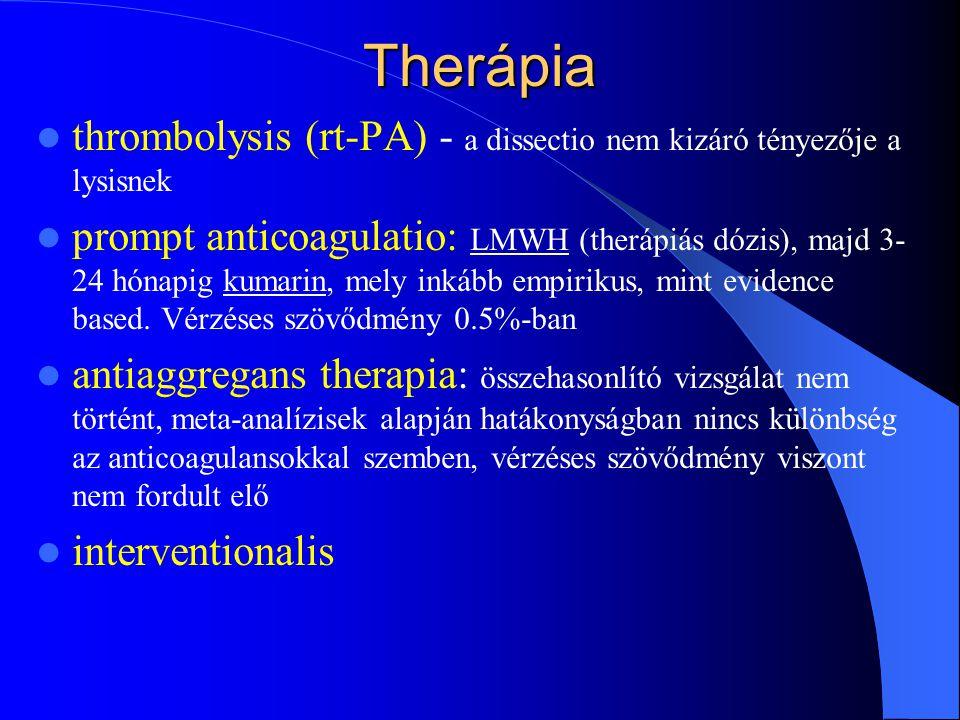 Therápia thrombolysis (rt-PA) - a dissectio nem kizáró tényezője a lysisnek.