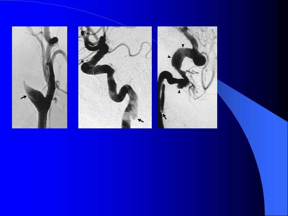 Figure 3. Angiographic Features of Dissection of the Carotid