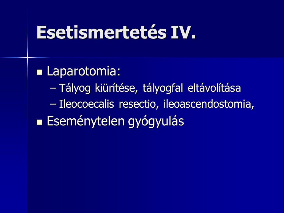 Esetismertetés IV. Laparotomia: Eseménytelen gyógyulás