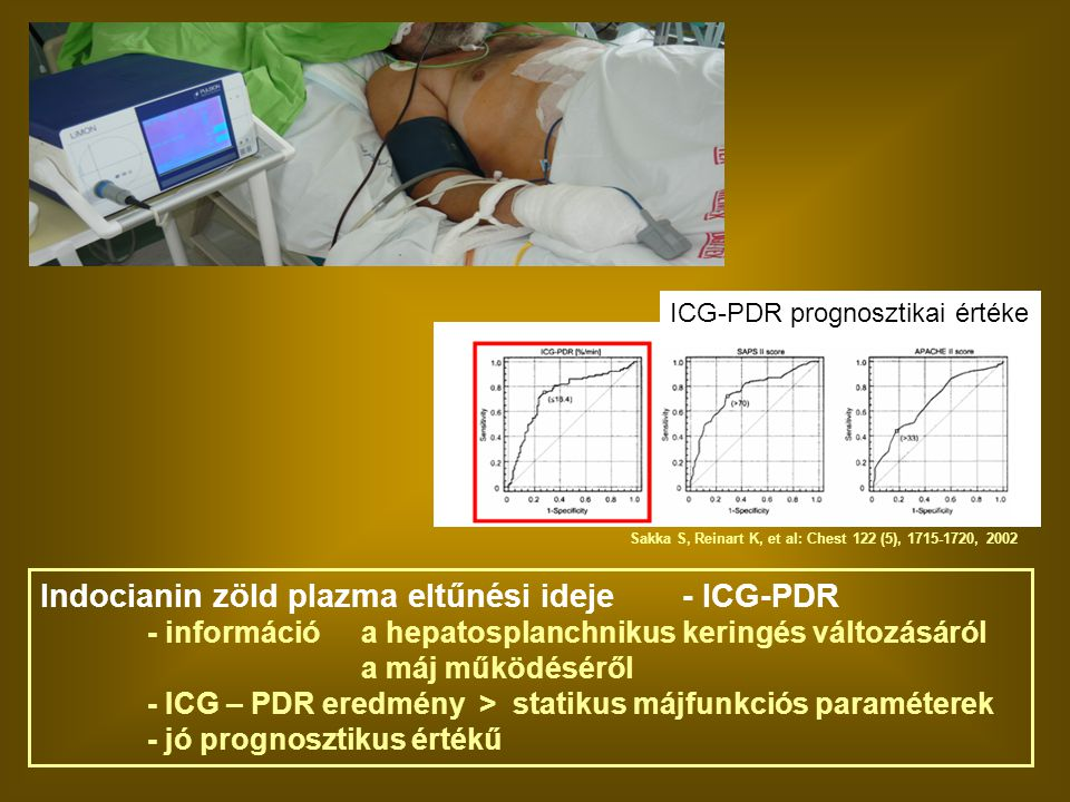 Indocianin zöld plazma eltűnési ideje - ICG-PDR