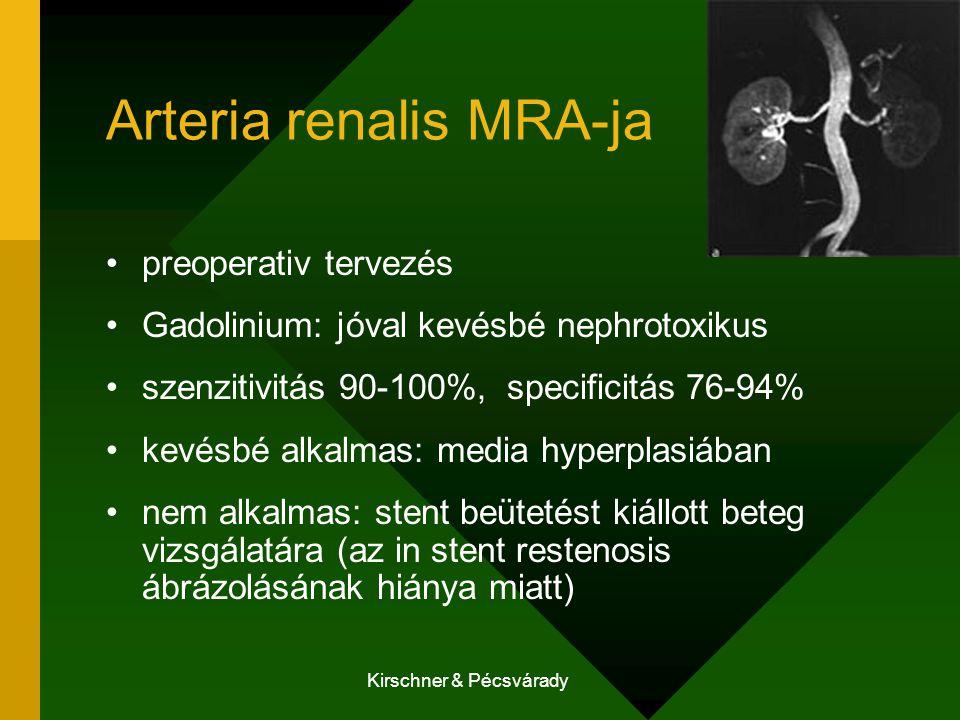Arteria renalis MRA-ja