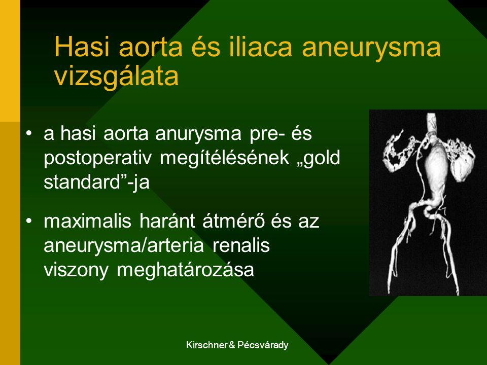 Hasi aorta és iliaca aneurysma vizsgálata