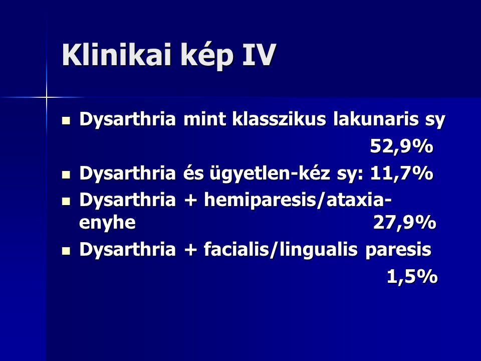 Klinikai kép IV Dysarthria mint klasszikus lakunaris sy 52,9%