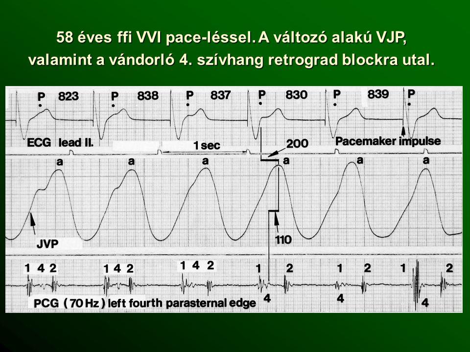 58 éves ffi VVI pace-léssel. A változó alakú VJP, valamint a vándorló 4.
