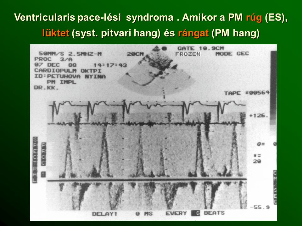 Ventricularis pace-lési syndroma. Amikor a PM rúg (ES), lüktet (syst