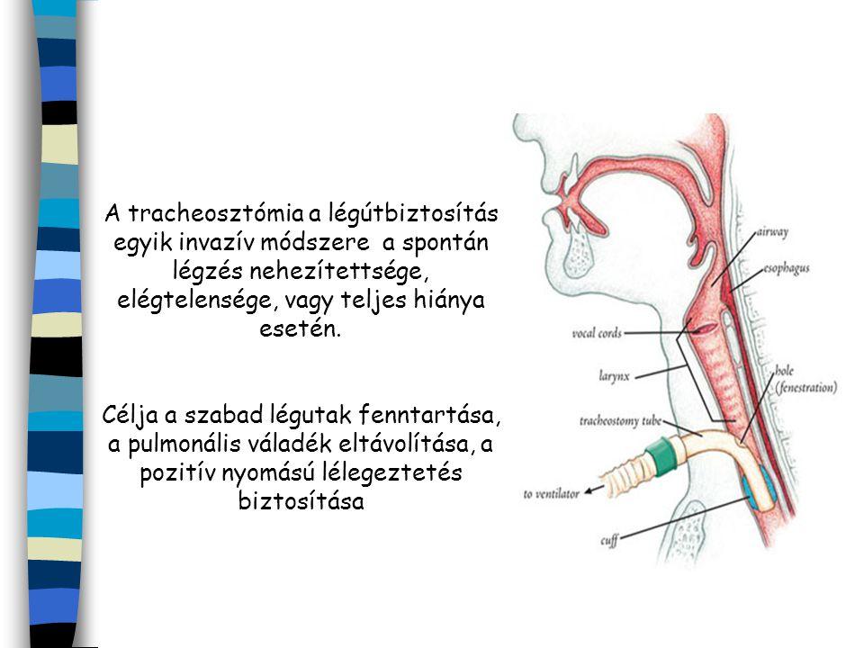 A tracheosztómia a légútbiztosítás egyik invazív módszere a spontán légzés nehezítettsége, elégtelensége, vagy teljes hiánya esetén.