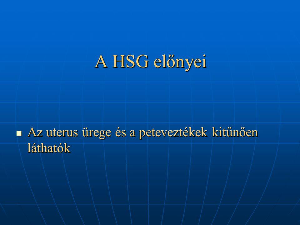 A HSG előnyei Az uterus ürege és a peteveztékek kitűnően láthatók