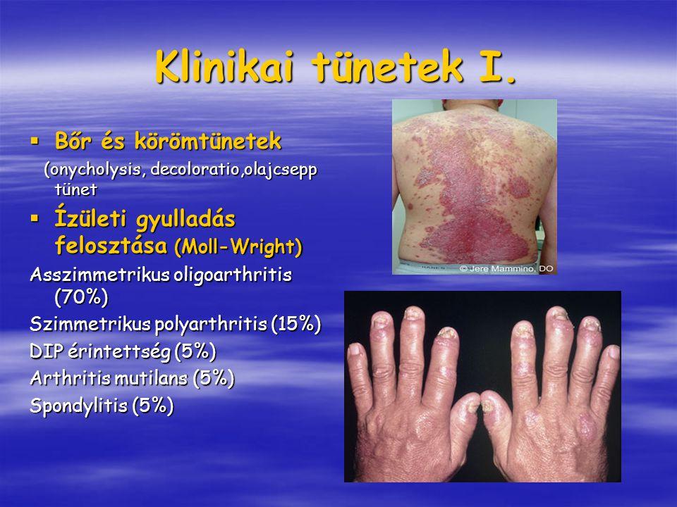 Klinikai tünetek I. Bőr és körömtünetek