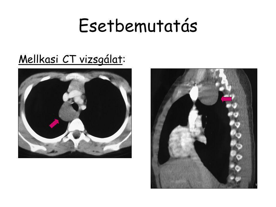 Esetbemutatás Mellkasi CT vizsgálat: