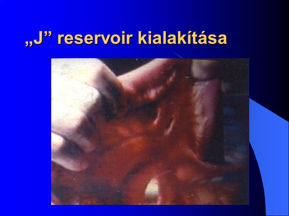 """""""J reservoir kialakítása"""
