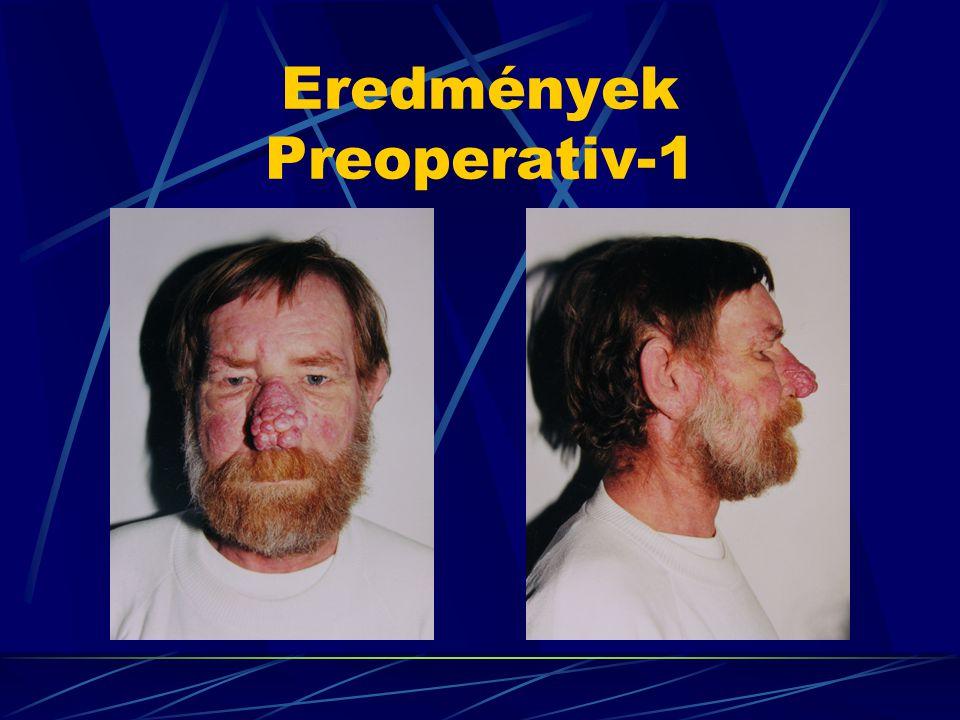Eredmények Preoperativ-1