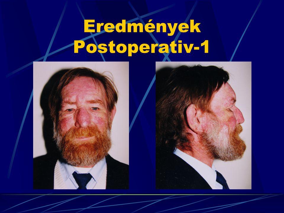 Eredmények Postoperativ-1