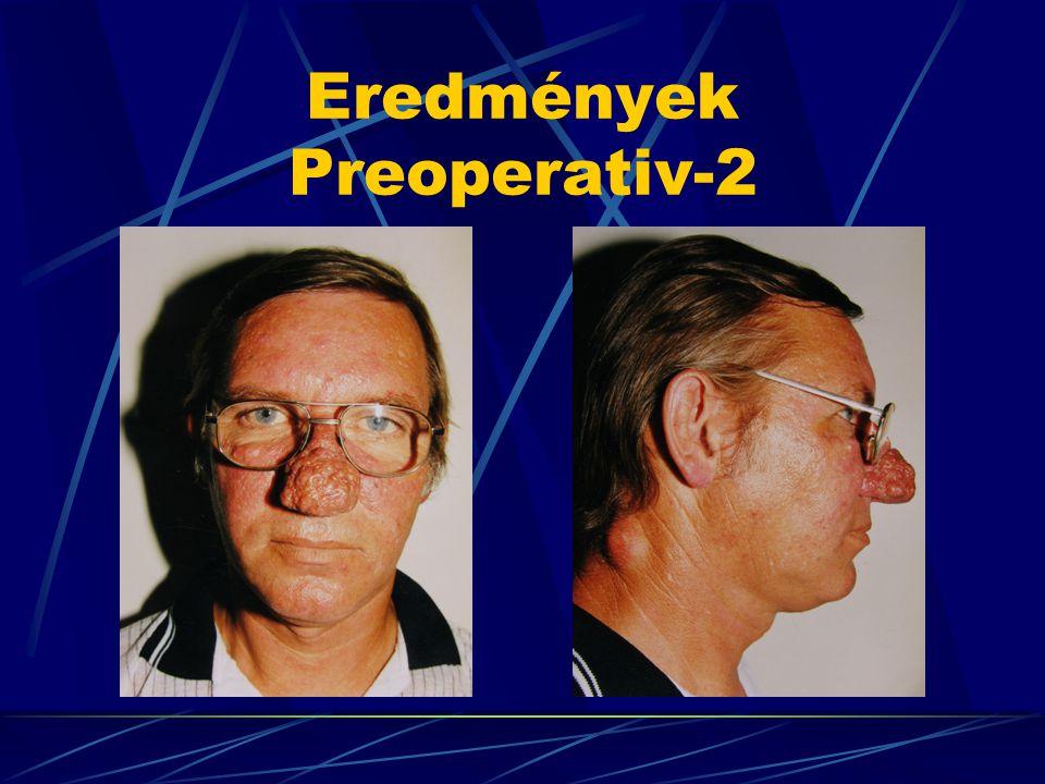 Eredmények Preoperativ-2