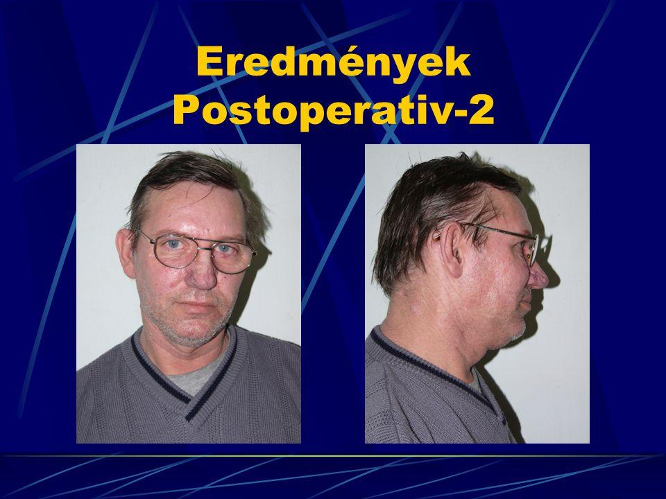 Eredmények Postoperativ-2
