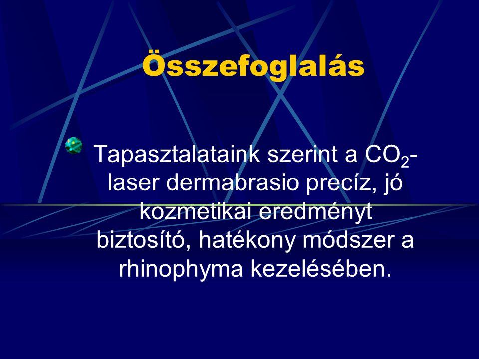 Összefoglalás Tapasztalataink szerint a CO2-laser dermabrasio precíz, jó kozmetikai eredményt biztosító, hatékony módszer a rhinophyma kezelésében.