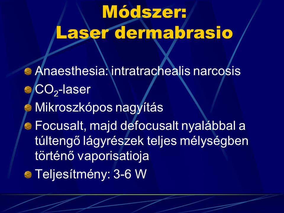 Módszer: Laser dermabrasio