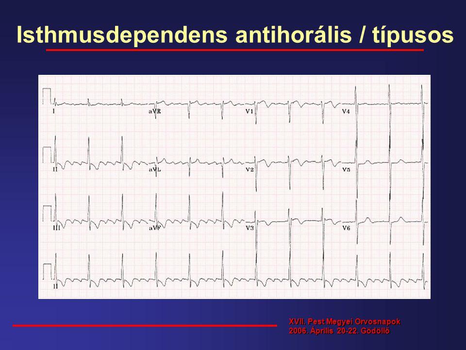 Isthmusdependens antihorális / típusos