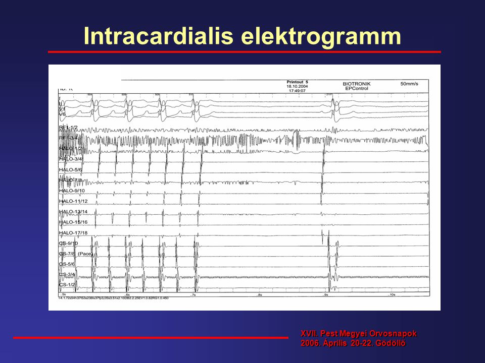 Intracardialis elektrogramm