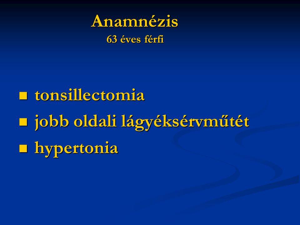 Anamnézis 63 éves férfi tonsillectomia jobb oldali lágyéksérvműtét hypertonia