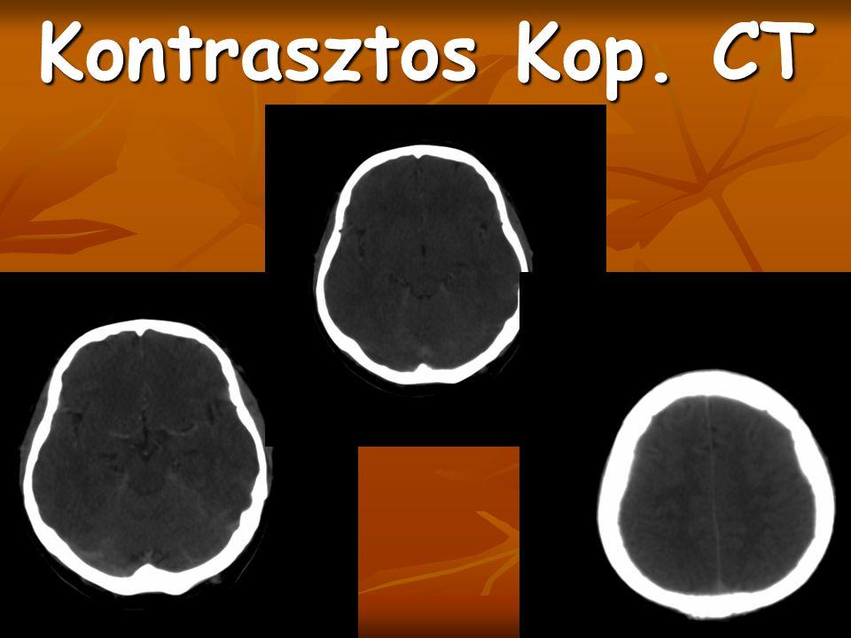 Kontrasztos Kop. CT Confl. Sin. Nem telődik rendesen, felette jóval nagyobb hyperdensitasnak kéne lenni(jobb old. Ábra)