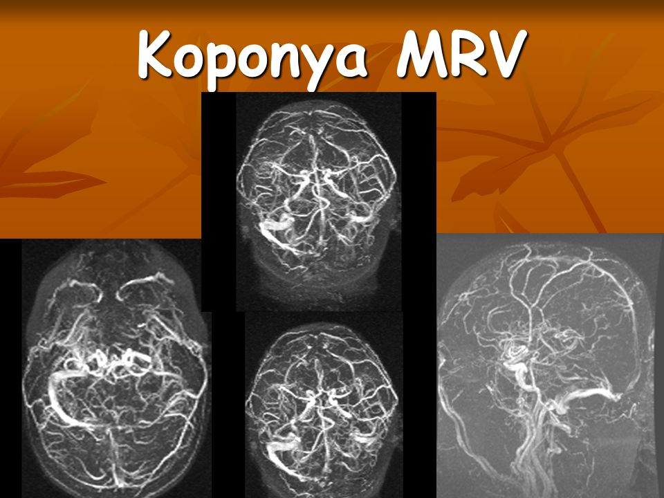Koponya MRV Sin. trans.l.s. nem telődik, ugyanezen az oldalon kompenzatorikusan tág felületes vénák.