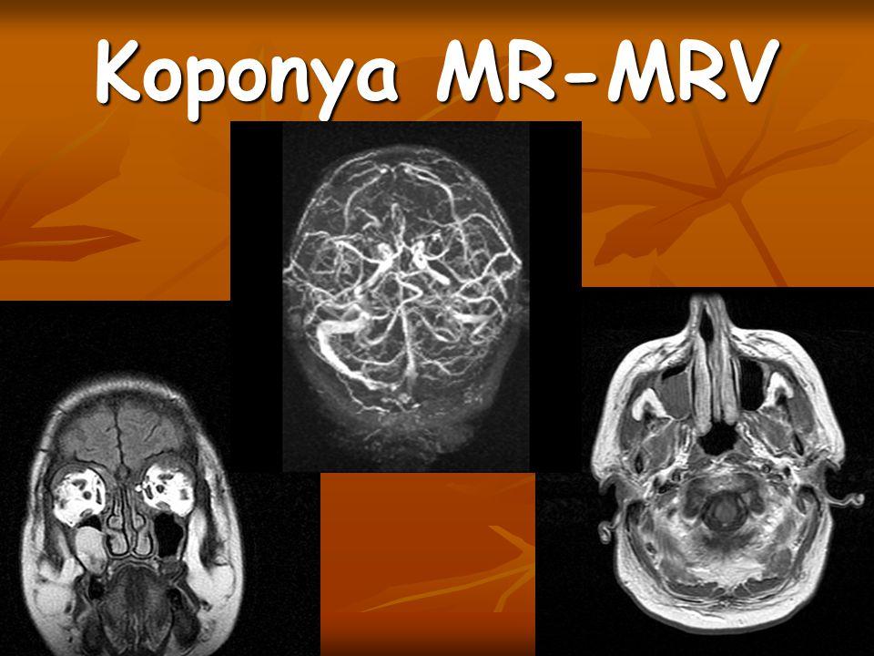 Koponya MR-MRV Jobb sin maxillarisban retentios cysta
