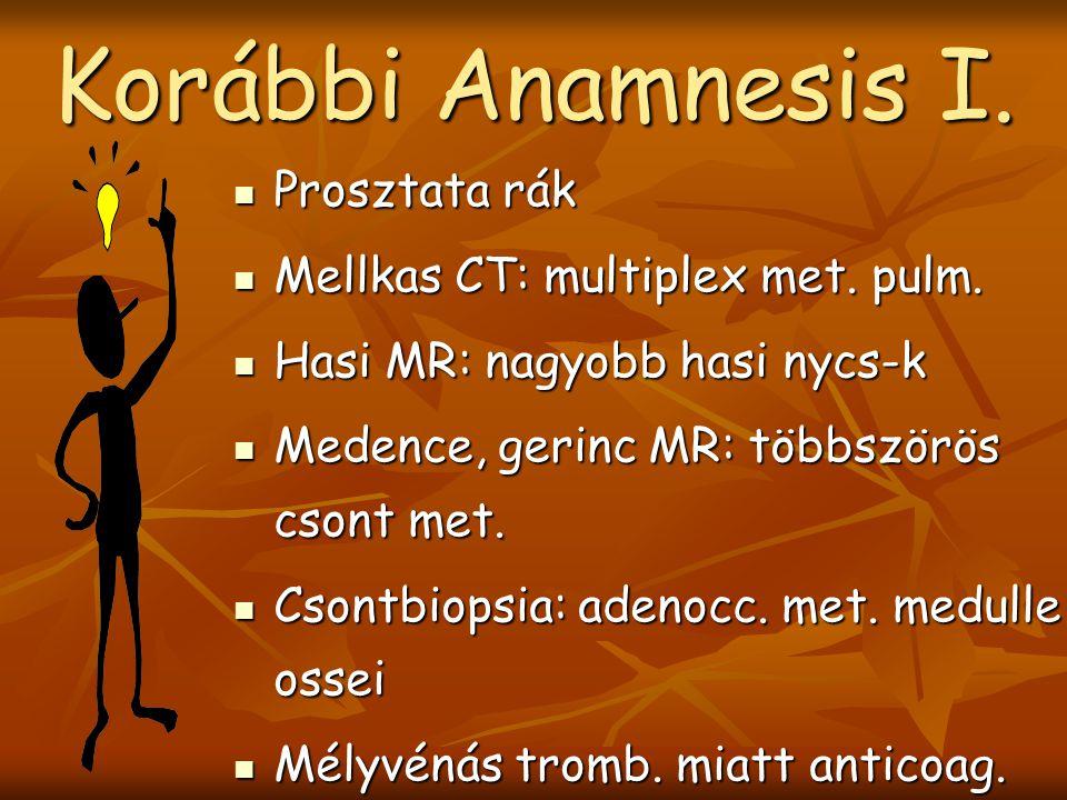Korábbi Anamnesis I. Prosztata rák Mellkas CT: multiplex met. pulm.
