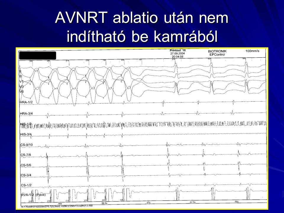 AVNRT ablatio után nem indítható be kamrából