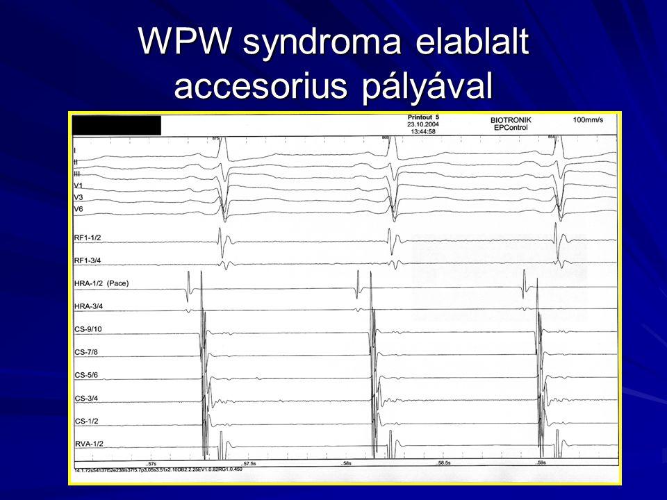 WPW syndroma elablalt accesorius pályával