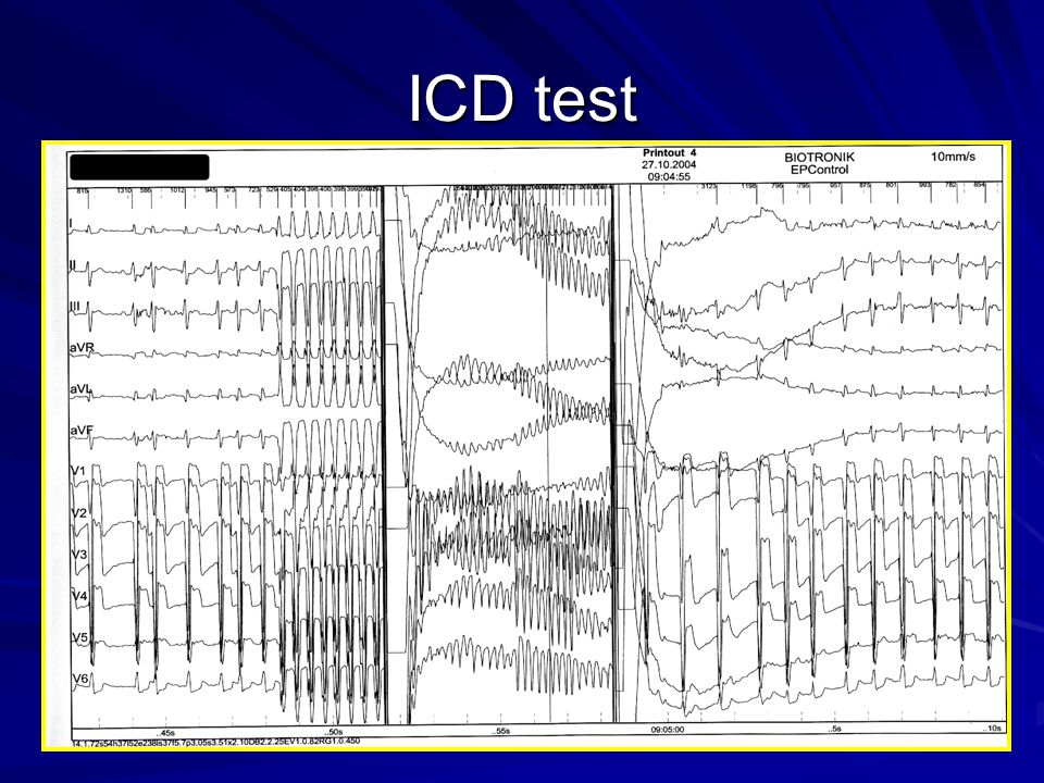 ICD test