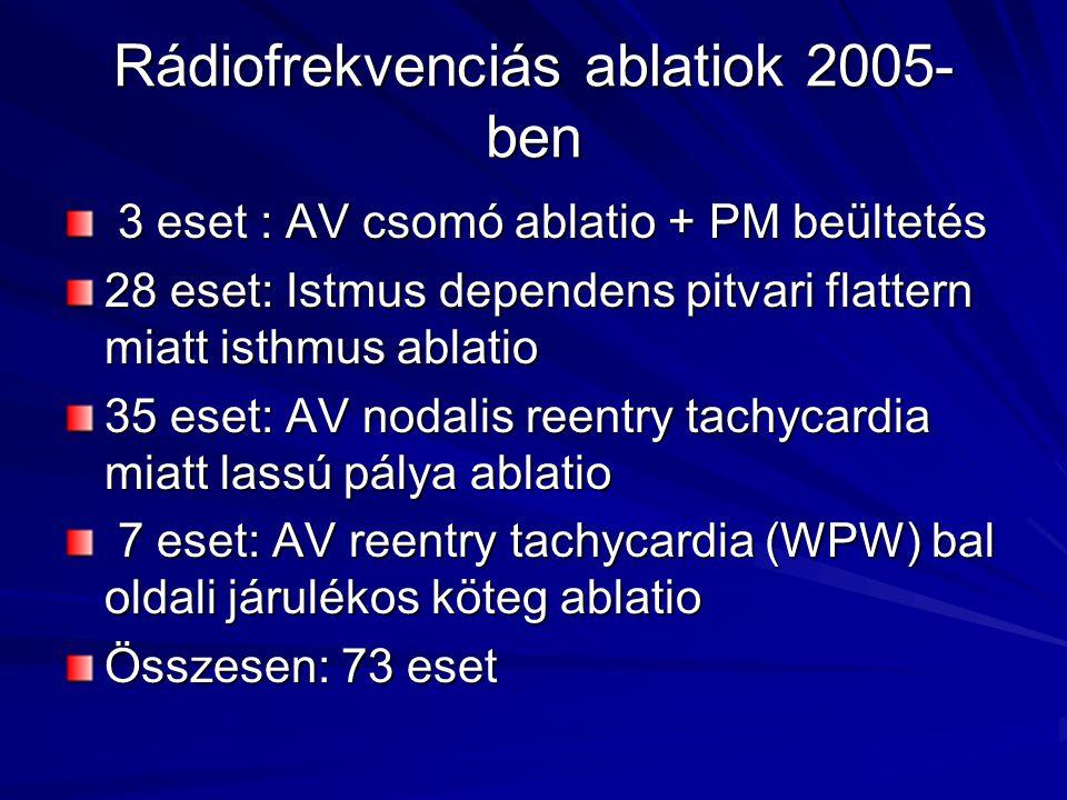 Rádiofrekvenciás ablatiok 2005-ben