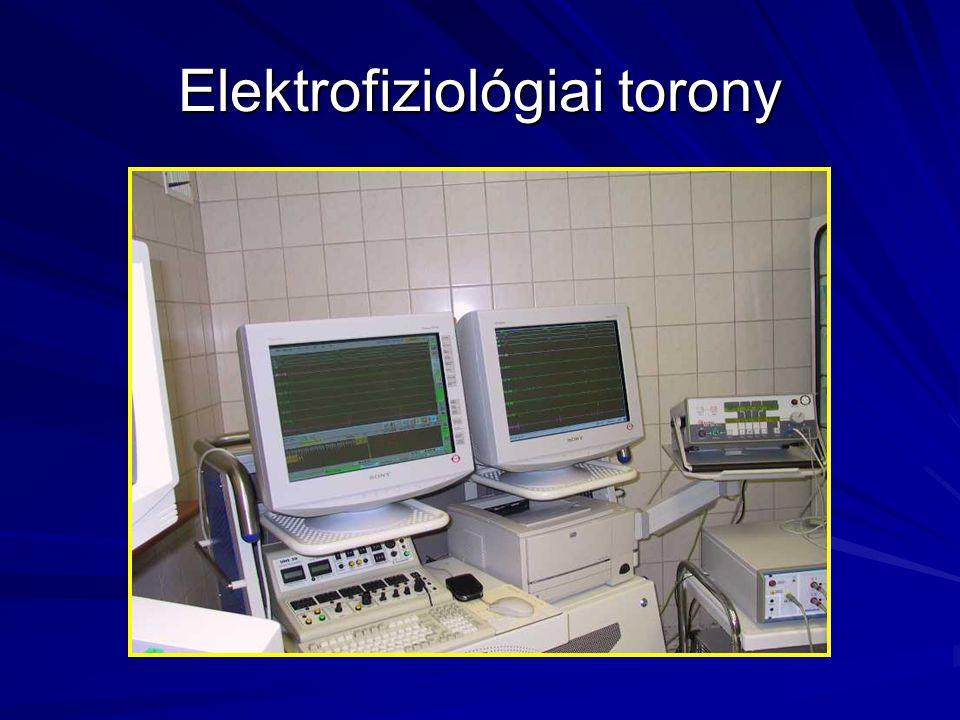 Elektrofiziológiai torony