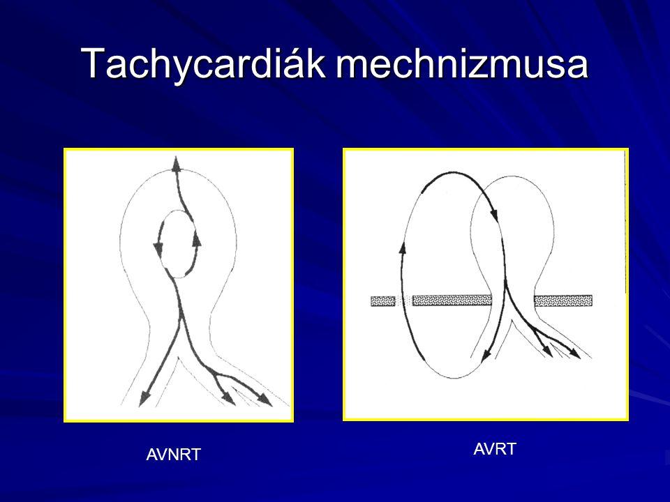 Tachycardiák mechnizmusa