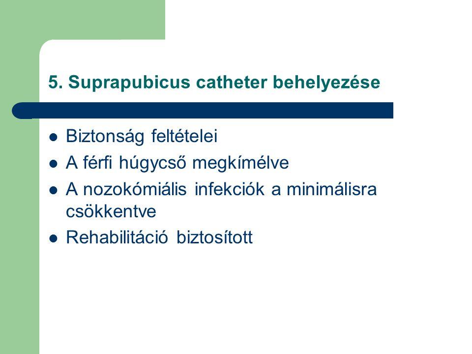5. Suprapubicus catheter behelyezése
