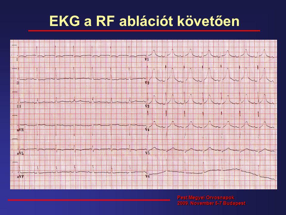 EKG a RF ablációt követően