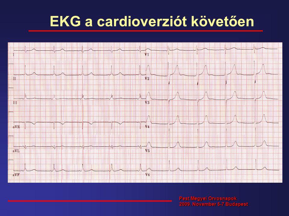 EKG a cardioverziót követően